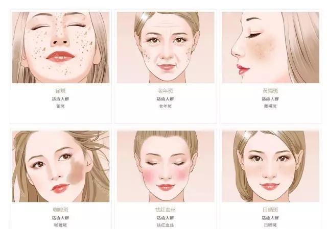 净肤镭射祛斑的优势