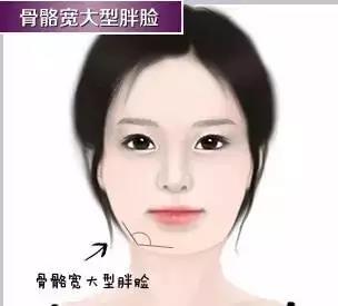 恒和医美:瘦脸针打三次真的能定型吗?